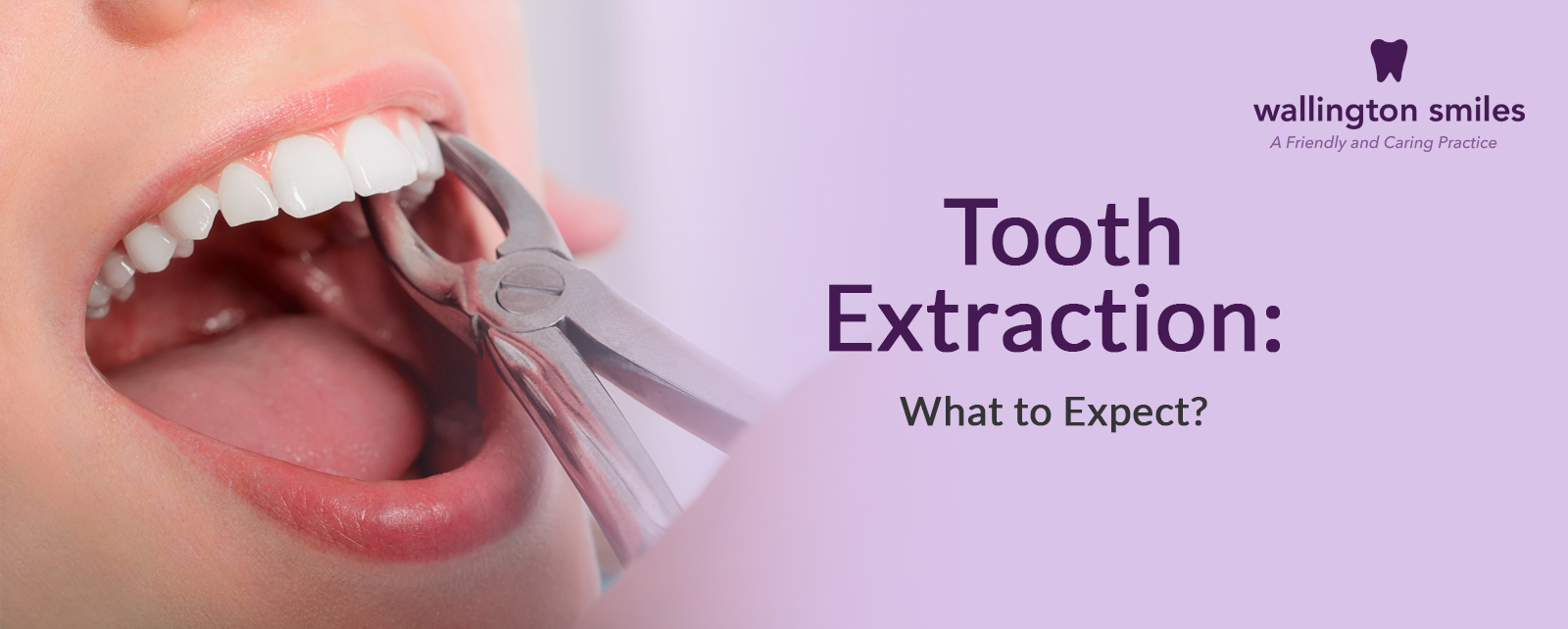 Tooth Extraction - dental surgery in Wallington