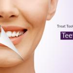 Teeth Whitening Carshalton
