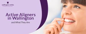 Active Aligners in Wallington