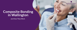 Composite Bonding in Wallington and How They Work