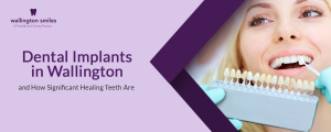 Dental Implants in Wallington